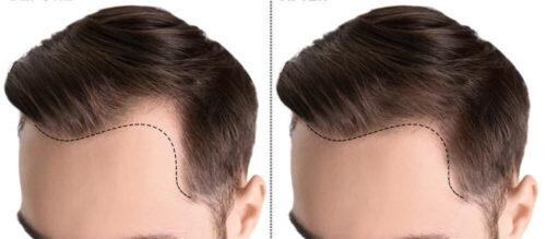 كل ماتعرفه عن عمليات زراعة الشعر التجميلية ومخاطرها