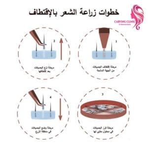 مراحل زراعة الشعر الطبيعي