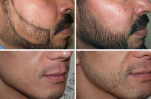 زراعة شعر الذقن قبل وبعد النتيجة