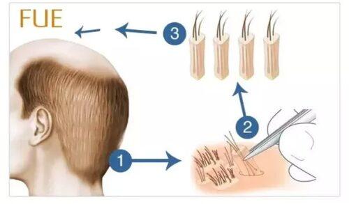 زراعة الشعر باستخدام تقنية FUE