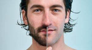 زراعة شعر الذقن واللحية