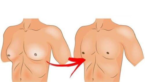 علاج التثدي عند الرجال .. أسبابه وطرق علاج ونصائح للتخلص منه