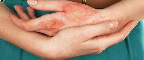 علاج الحروق (أنواع الحروق وطرق العلاج المختلفة)