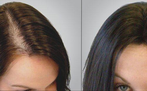 زراعة الشعر في مصر