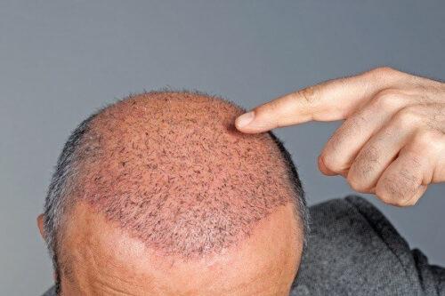 زراعة الشعر في مصر وخطوات عملية الزراعة ومميزاتها