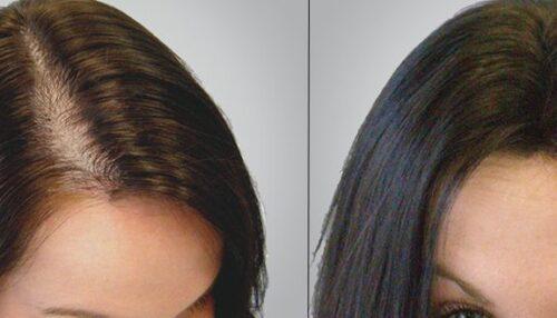 عمليات زراعة الشعر للنساء