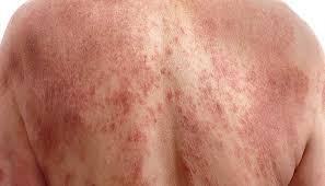 تعرف على سرطان الجلد وأهم أنواعه وأعراضه وأسبابه