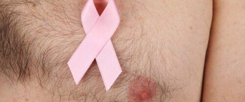 أورام الثدي عند الرجال وطرق العلاج وكيفية الإصلاح