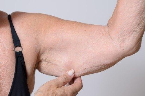 تجميل الذراعين (أسباب ترهل الذراعين وطرق العلاج ومضاعفاته)