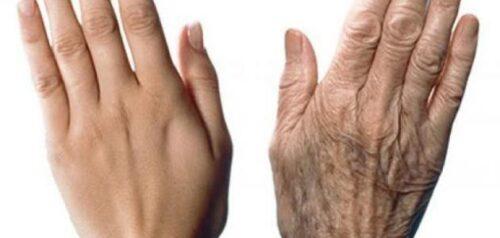 طرق مختلفة ووصفات طبيعية في علاج تجاعيد اليدين