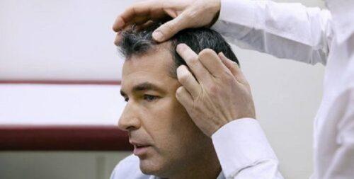 افضل دكتور زراعة شعر