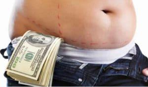 تكلفة شفط الدهون