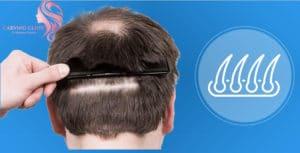 زراعة الشعر الطبيعي بالإقتطاف تقنيات حديثة