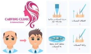 زراعة الشعر الطبيعي مراحل