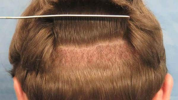 السؤال الأكثر ترددًا..متى تنبت البصيلات بعد زراعة الشعر
