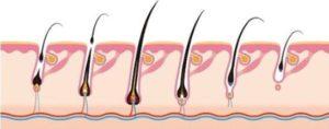 مراحل نمو زراعة الشعر