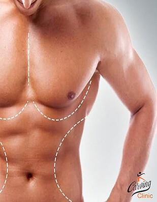 تثدي الرجال, علاج التثدي عند الرجال