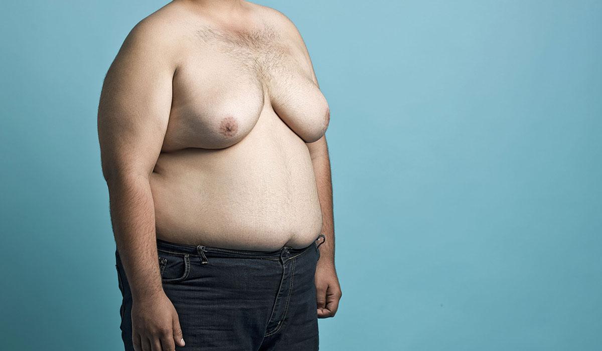 الفرق بين التثدي و الدهون