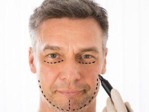 عمليات تجميل الوجه للرجال