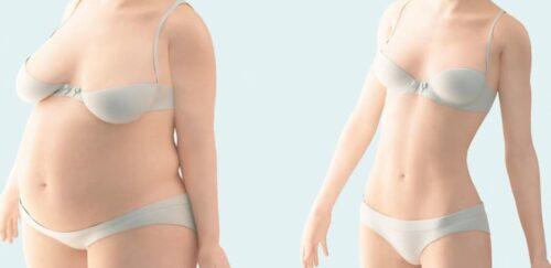 تكلفة عملية شفط الدهون بالفيزر