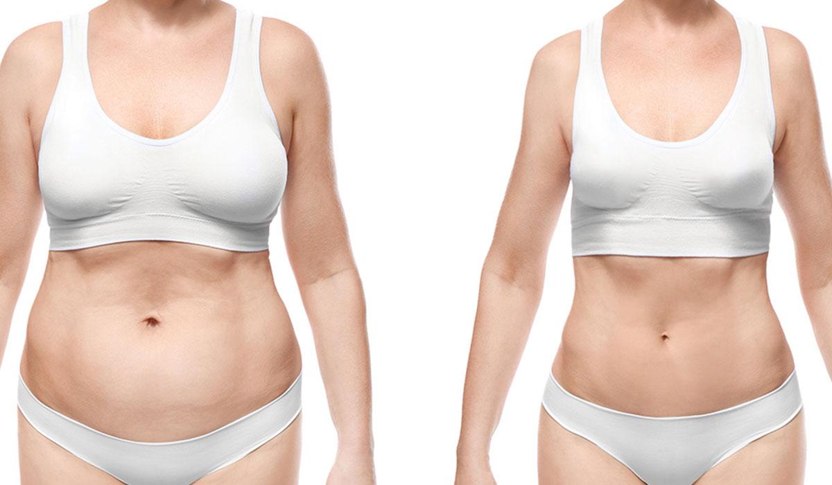 ما هي عملية شفط دهون البطن
