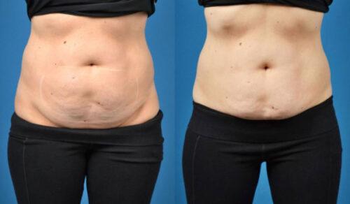 هل هناك شروط معينة للخضوع لعملية شفط الدهون؟