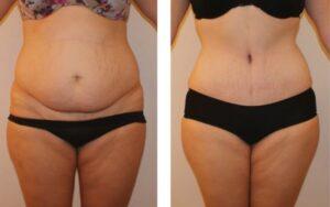 قبل وبعد شفط الدهون