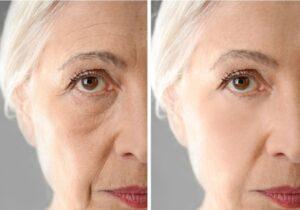 العمر المناسب لشد الوجه