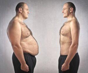 طرق شفط الدهون