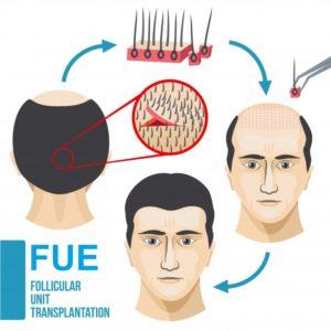 FUE Hair