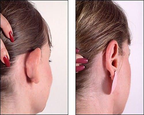 عملية تجميل الاذن (الأسباب – الطرق – المضاعفات)