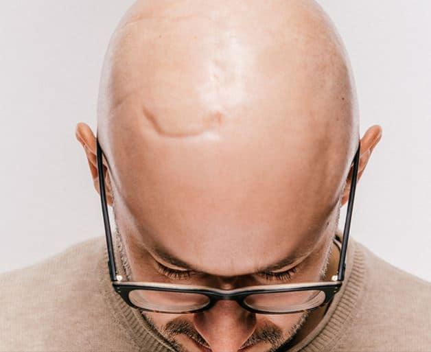 زراعة الشعر فوق الندبات والجروح