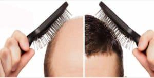 زراعة الشعر فوق الجروح
